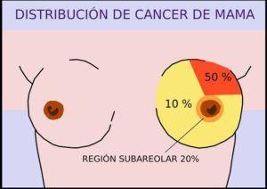 cancer de mama y deporte